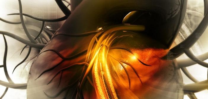 Editorial : La thrombose de stent dans tous ses états