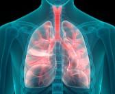 Hypertension pulmonaire d'origine cardiaque gauche: critères échocardiographiques