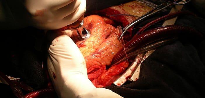 Revascularisation coronaire chez le diabétique
