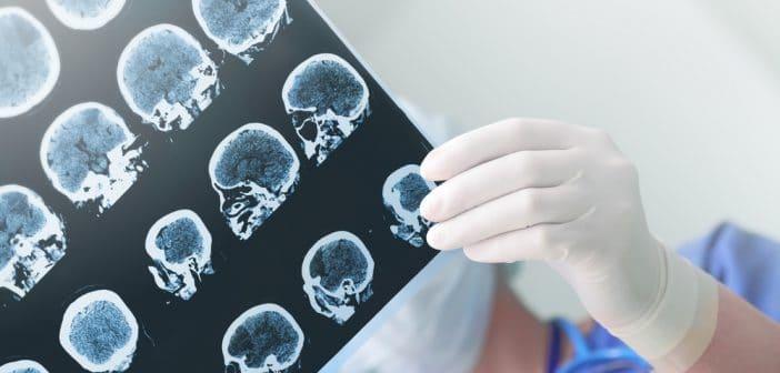 Éditorial : Sténoses carotides: chirurgie, stenting ou traitement médical seul?