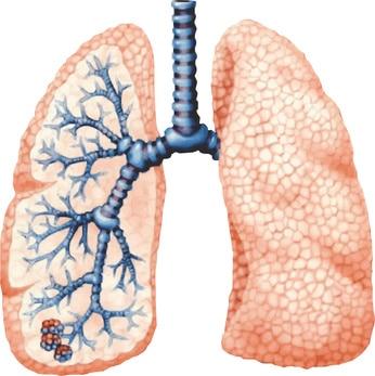 Hypertension artérielle pulmonaire - Réalités Cardiologiques