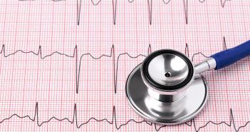 La cardiopathie rythmique: mythe ou réalité?