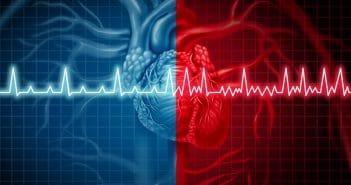De la fibrillation atriale paroxystique à la fibrillation atriale persistante: incidence, facteurs prédictifs et impact clinique de la progression de l'arythmie