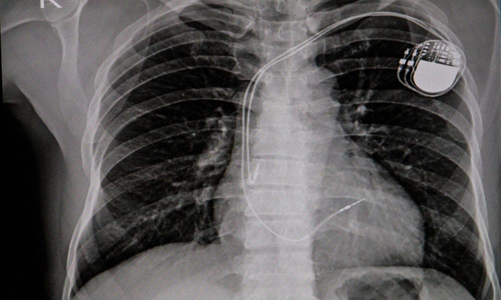 Endocardite infectieuse sur dispositif électronique intracardiaque ...