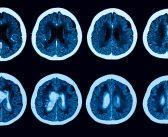 Prise en charge de l'hypertension artérielle dans l'accident vasculaire cérébral
