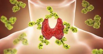 Amiodarone et pathologies thyroïdiennes